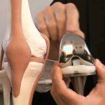 La chirurgie orthopédique à l'ICOS13 de Marseille