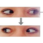Comment faire pour améliorer sa vue ?